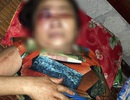 Truy tìm thanh niên đánh một phụ nữ 65 tuổi hư mắt