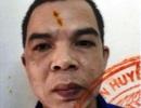 Hà Nội: Bị phát hiện, tên trộm giết người, đốt xác phi tang