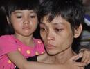 Tấn bi kịch của người đàn bà chỉ nặng... 20kg