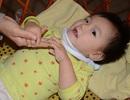 Ánh mắt đáng thương của bé 15 tháng tuổi mắc chứng bại não