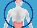 Lo âu là do thiếu vi khuẩn đường ruột?