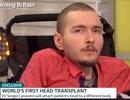 Ca phẫu thuật ghép đầu người đầu tiên đã thành công?
