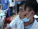 Người nhà bệnh nhân đánh nam điều dưỡng chấn thương vùng mặt