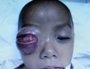 Bé trai 16 tháng suýt mất mắt phải vì viêm xoang
