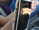 iPhone 7 phát nổ trên tay người khi đang nói chuyện điện thoại