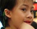 TPHCM: Miễn phí cấy ốc tai điện tử cho trẻ dưới 7 tuổi