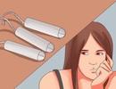 4 dấu hiệu cảnh báo chu kỳ kinh không đều