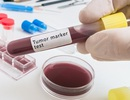Chương trình máy tính chẩn đoán và xác định vị trí của ung thư từ mẫu máu