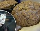 """Lần đầu tiên nuôi cấy thành công """"bộ não tí hon"""" trong phòng thí nghiệm"""