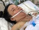 Thai phụ mất con, sinh mạng lâm nguy vì tiền sản giật