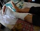Tổ trưởng tổ dân phố xông ra bắt cướp tiệm vàng bị tông gãy chân