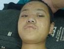 Không có 60 triệu mổ cột sống, cậu bé 12 tuổi mồ côi cha mẹ có nguy cơ liệt vĩnh viễn