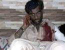 IS đánh bom đẫm máu tại Pakistan, 72 người chết