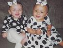 Cặp song sinh khác màu da đón sinh nhật đầu tiên