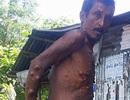Người đàn ông 40 năm không đi bộ vì khối u khổng lồ trên đùi