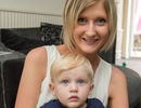 Thay đổi hormone, bà mẹ bị mù suốt thai kỳ