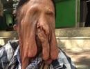 Căn bệnh lạ khiến cụ bà 63 chảy xệ mặt đến biến dạng
