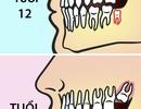 Vì sao nên nhổ răng khôn trước 25 tuổi?