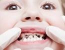 Răng sâu và xấu – Lỗi tại ai?