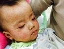 Gia tăng trẻ mắc sởi tại Hà Nội, 1 trẻ tử vong