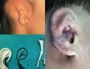 Cậu bé 8 tuổi nuôi tóc dài như con gái che vành tai khiếm khuyết bẩm sinh