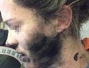 """Apple """"phủi trách nhiệm"""" vụ nổ tai nghe khiến người dùng bỏng mặt"""