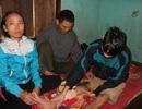 Đôi vợ chồng nghèo van xin cứu lấy chân của đứa con trai tội nghiệp