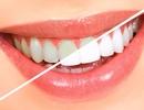 Để không tốn tiền vô ích khi tẩy trắng răng