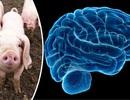 Tiêm tế bào não lợn vào não người nhằm đánh bại căn bệnh Parkinson
