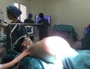 Bệnh nhân như mang bầu song sinh vì khối u 16kg trong bụng