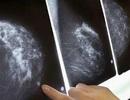 Đau lòng những trường hợp 15 - 16 tuổi đã bị ung thư vú