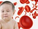 Vì sao trẻ bị thiếu máu thiếu sắt?
