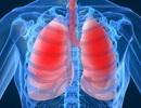 Viêm phổi, nhiễm trùng huyết tăng nguy cơ bệnh tim