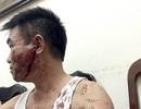 Hà Nội: Cán bộ thanh tra xây dựng đánh anh trai nhập viện