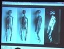 Xác ướp người ngoài hành tinh tìm thấy ở Peru là thật?
