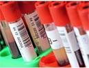 Xét nghiệm máu thử nghiệm phát hiện 96% trường hợp tự kỷ