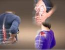 Bí quyết phòng ngừa bệnh viêm khớp xương