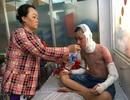 Hai học sinh bị bỏng cồn nặng khi đang học thí nghiệm