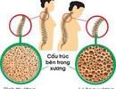 Canxi, vitamin D và tập luyện làm giảm nguy cơ loãng xương