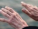 Thêm một phương pháp trong điều trị làm chậm tiến triển của bệnh Parkinson