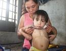 Thương bé gái 4 tuổi có nguy cơ bị bại liệt