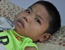 Không có 20 triệu phẫu thuật gãy tay, cậu bé 17 tuổi nguy kịch tính mạng