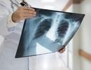 9 dấu hiệu không phổ biến của ung thư phổi
