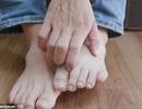 Tiết lộ không ngờ về sức khỏe qua dấu hiệu ở 2 bàn chân