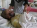 Thai phụ bỏng nặng, mất con vì treo xăng ở trong bếp