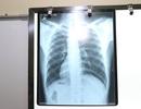 Kỳ lạ bệnh nhân có trái tim, nội tạng đảo ngược với người bình thường