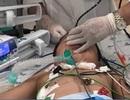 Bé 3 tuổi ngưng tim, ngưng thở vì hóc hạt mãng cầu