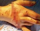 Nối thành công bàn tay bị đứt lìa do cưa máy cắt