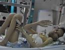 Ánh mắt cầu cứu khẩn thiết của cậu bé ghép phổi từ người chết não
