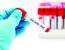 5 cách tự nhiên giúp giảm axit uric, ngăn ngừa bệnh gút tại nhà